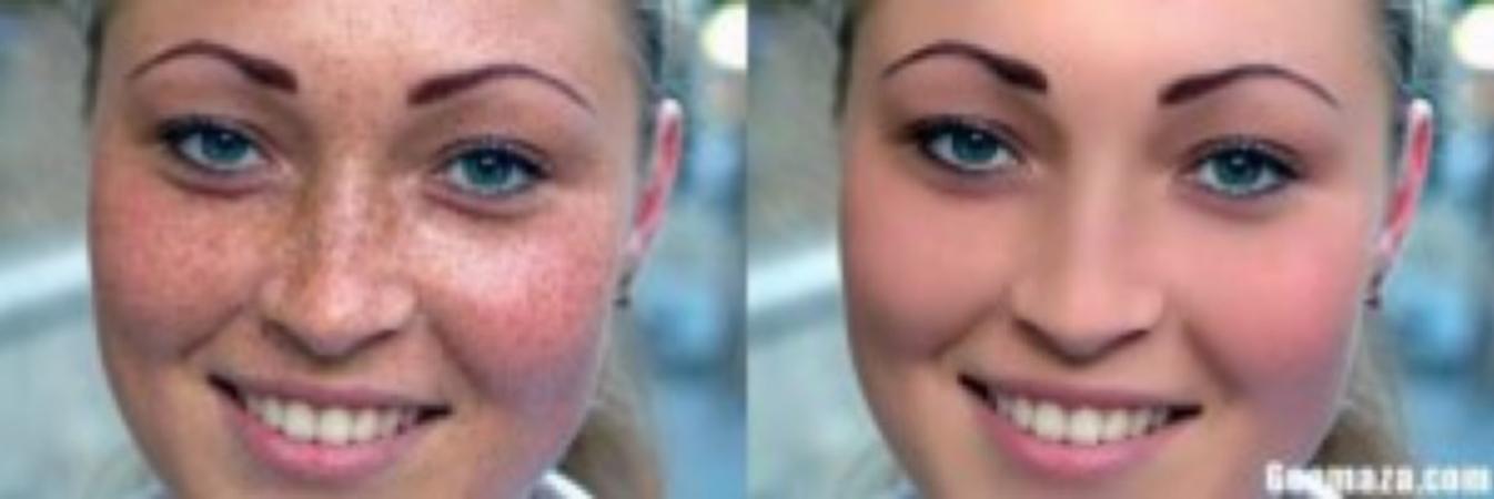 lemon juice to remove freckles